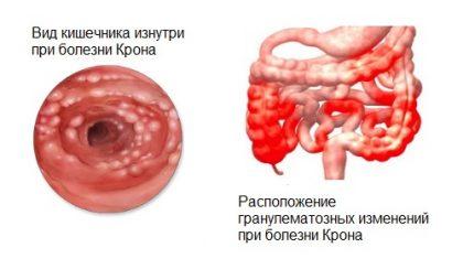 Кал с кровью анальные трещины