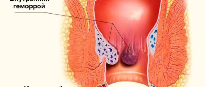 Геморрой снять воспаление в домашних условиях