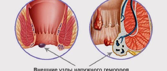Геморрой внешний лечение профилактика причины возникновения
