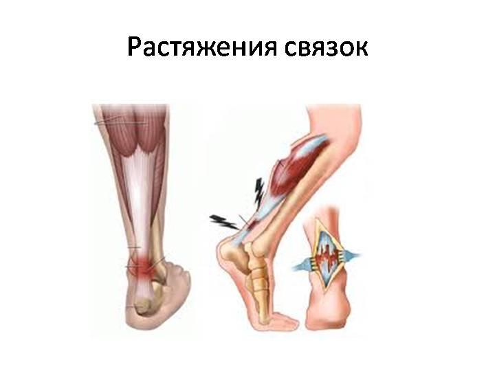 что будет если не лечить растяжение связок коленного сустава