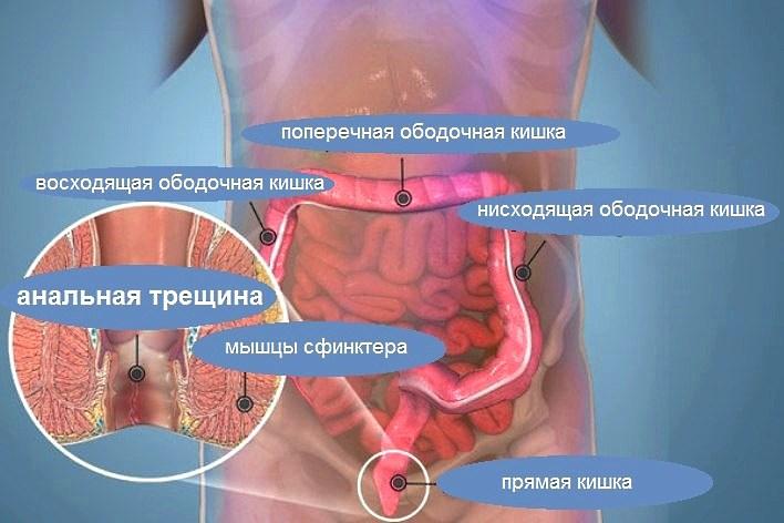 Как предохраниться о уретрита при анальном сексе