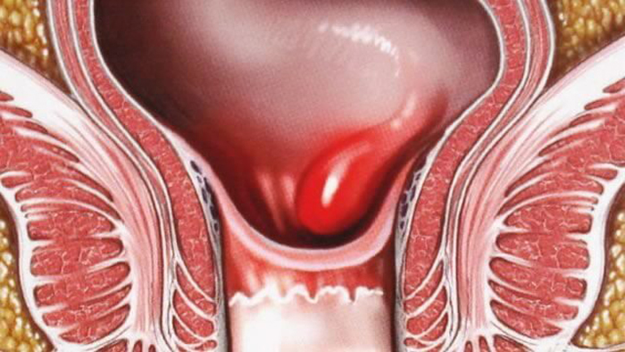 Чем лечить кровоточащий геморрой в домашних условиях быстро 458