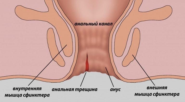 analniy-zud-pomogite