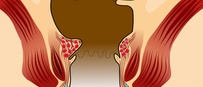 геморрой у женщин симптомы