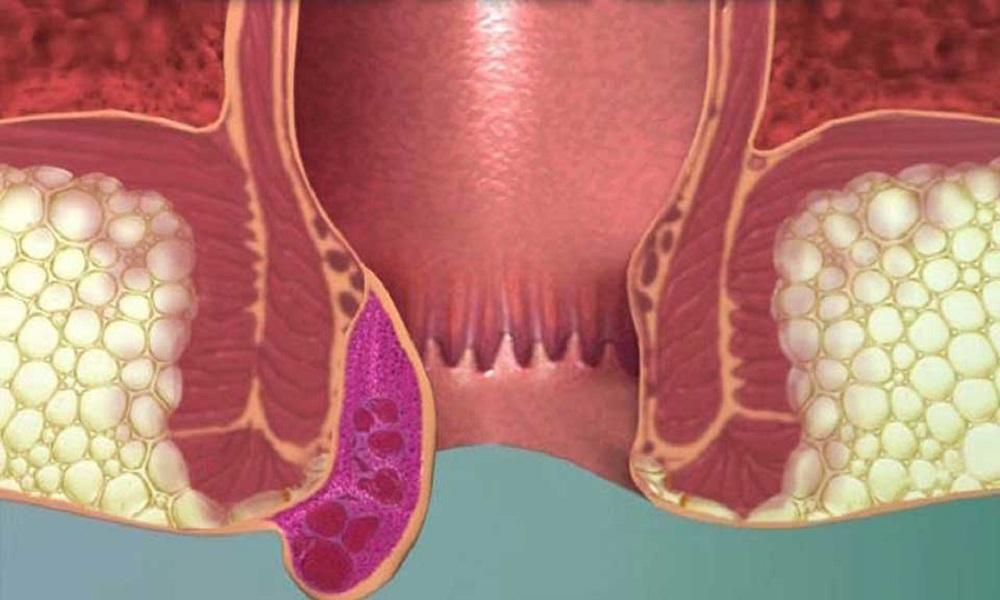 Внешний геморрой симптомы у мужчин