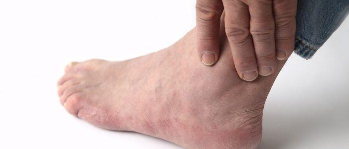 Может ли болеть нога при геморрое thumbnail