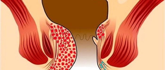 Можно ли вылечить геморрой на 4 стадии: характеристика заболевания и проявление, симптомы тяжелой формы заболевания, методы оперативного лечения последней формы патологии