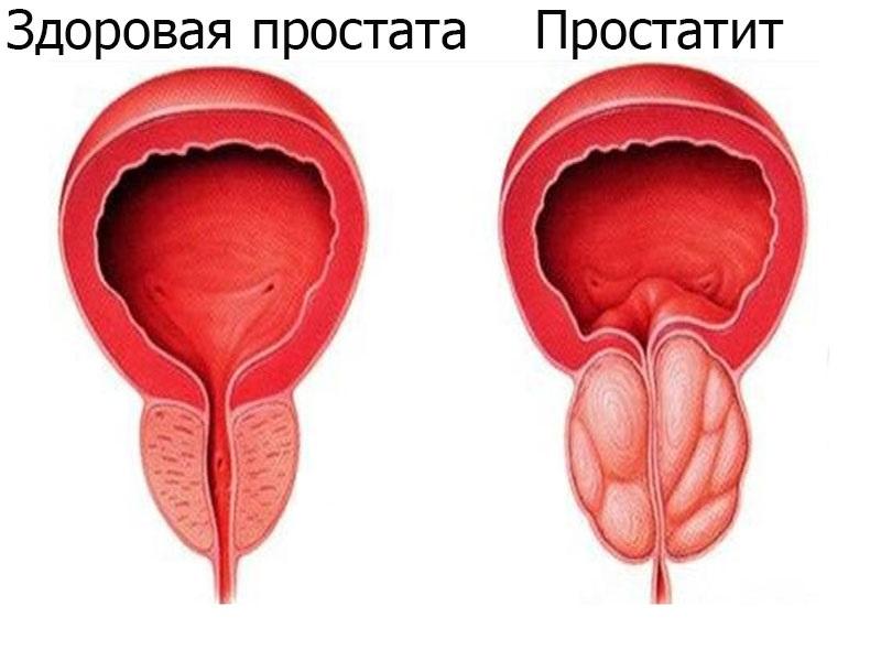 Простатит вылечили боль осталась народная медицина простатит и мед