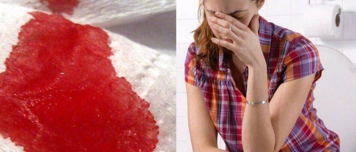 Кал с кровью после родов у женщин